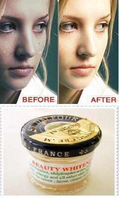 Whitening Cream Of France